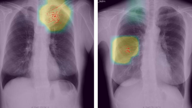 Preferred Networks Uses Deep Learning to Help Kyoto Physicians Diagnose Lung Cancer from Chest X-Ray Images